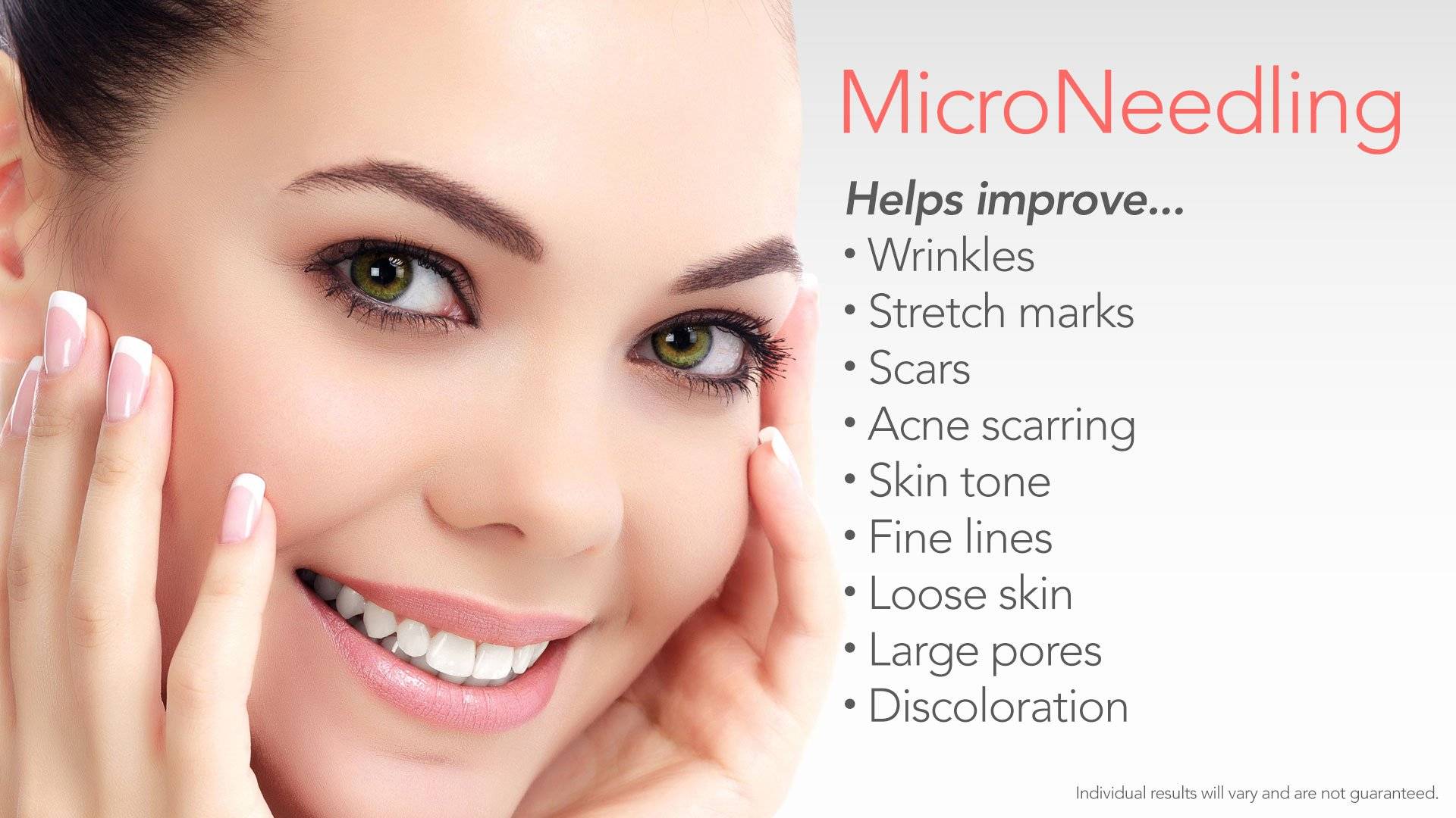 Microneedling-Good-For-2018